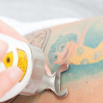 Neues Laserhandstück für die Tattooentfernung